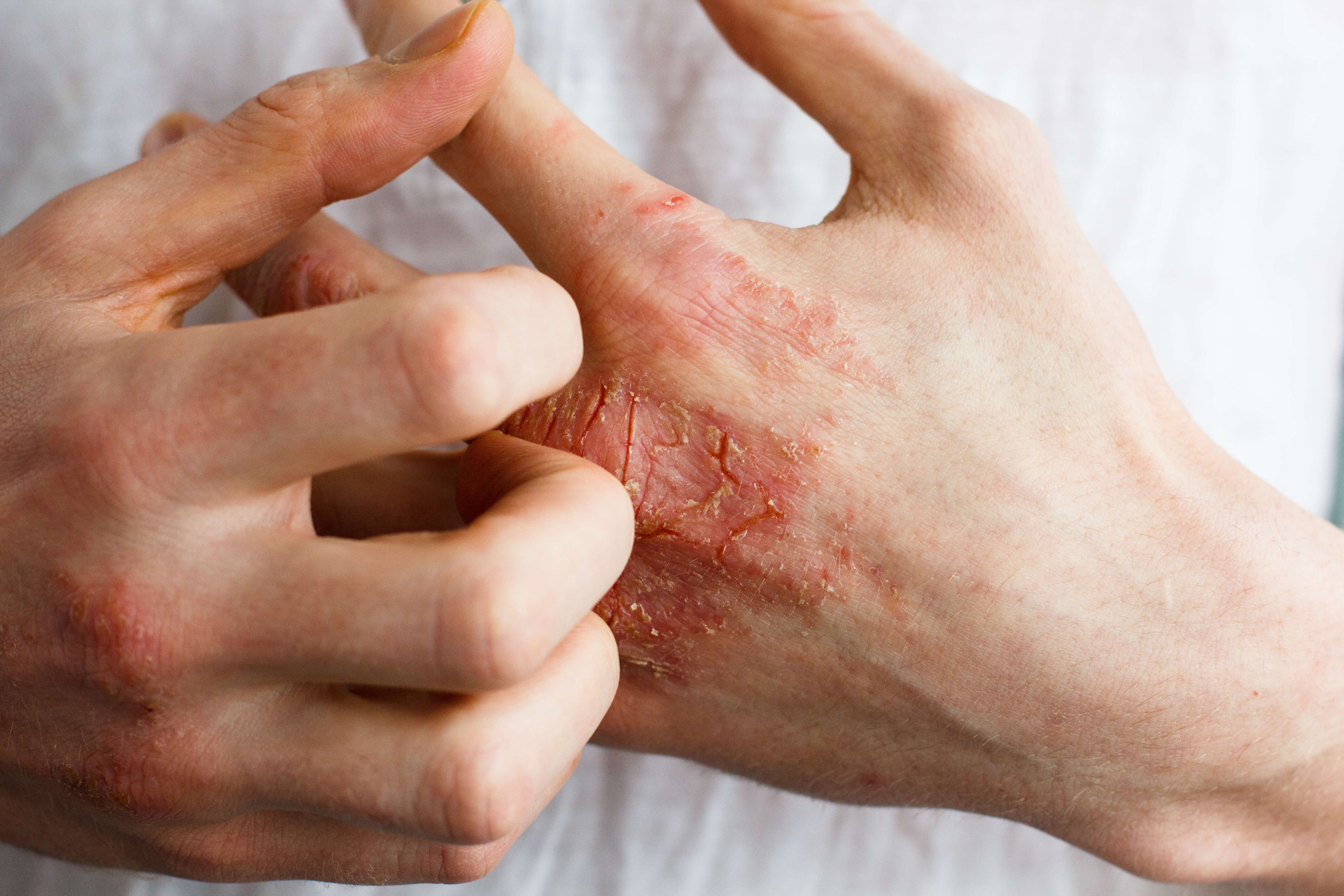ketogenic diet and psoriasis inflamation